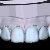 Lente de Porcelana em BH – Dr Alysson Resende Ortodontia
