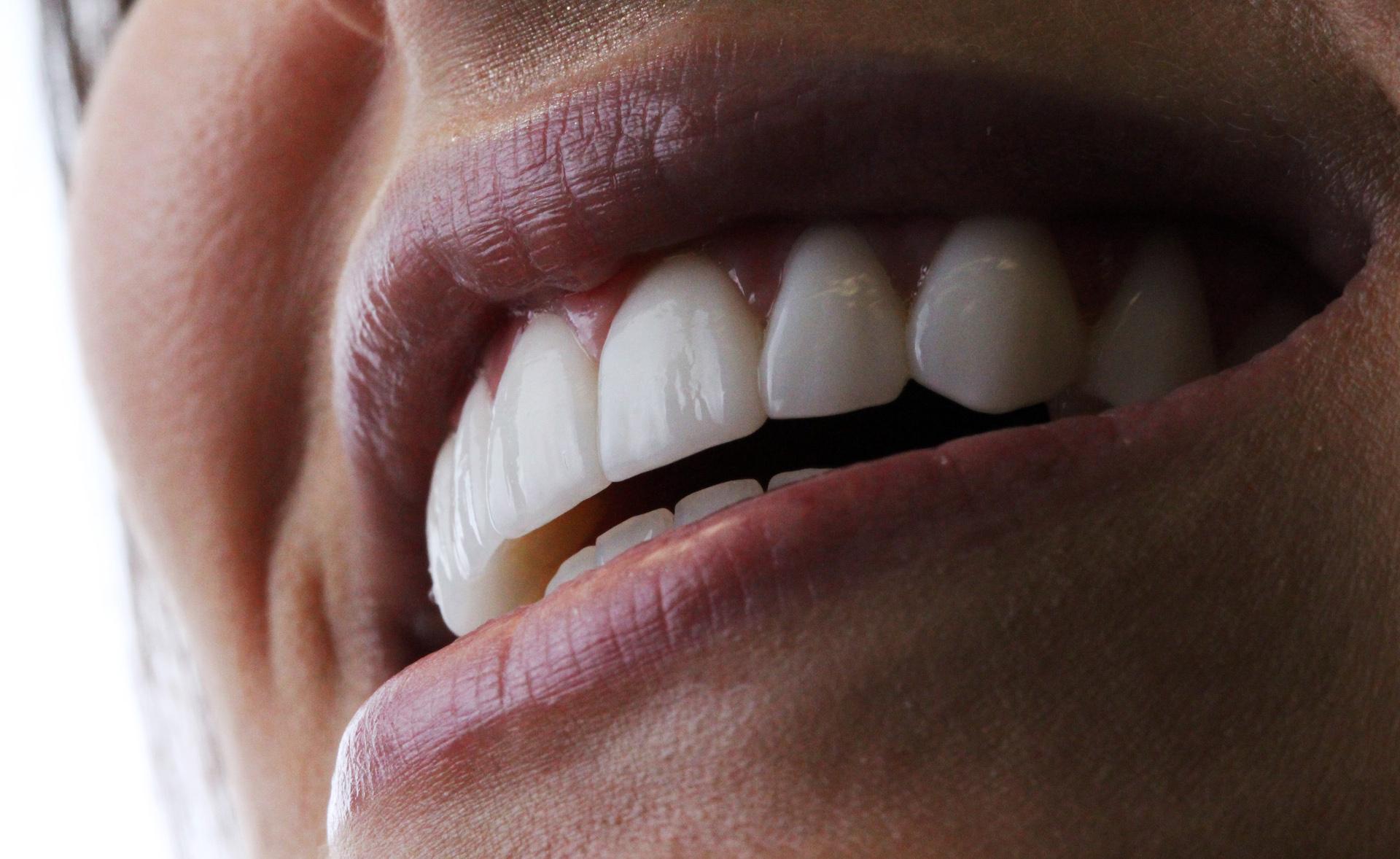 Lente de porcelana odontologia