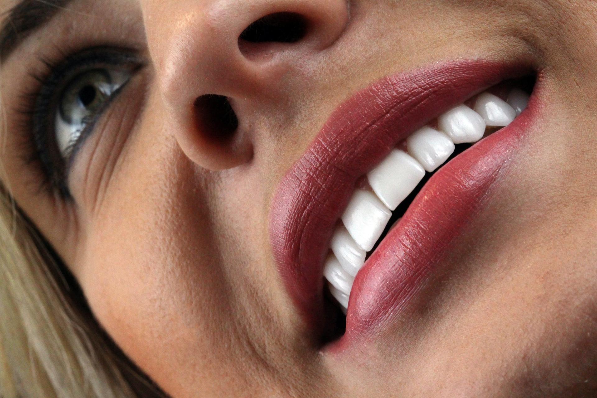 Lente de porcelana Ar odontologia lente