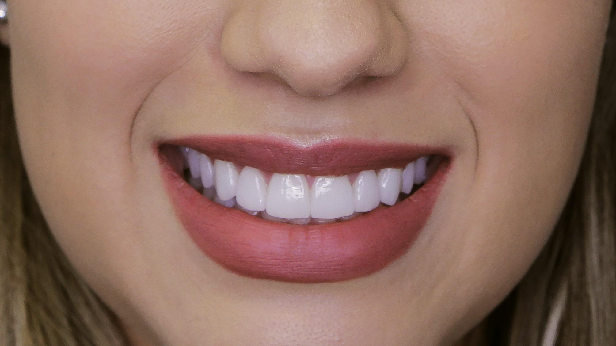 Sorriso odontologia lente de porcelana