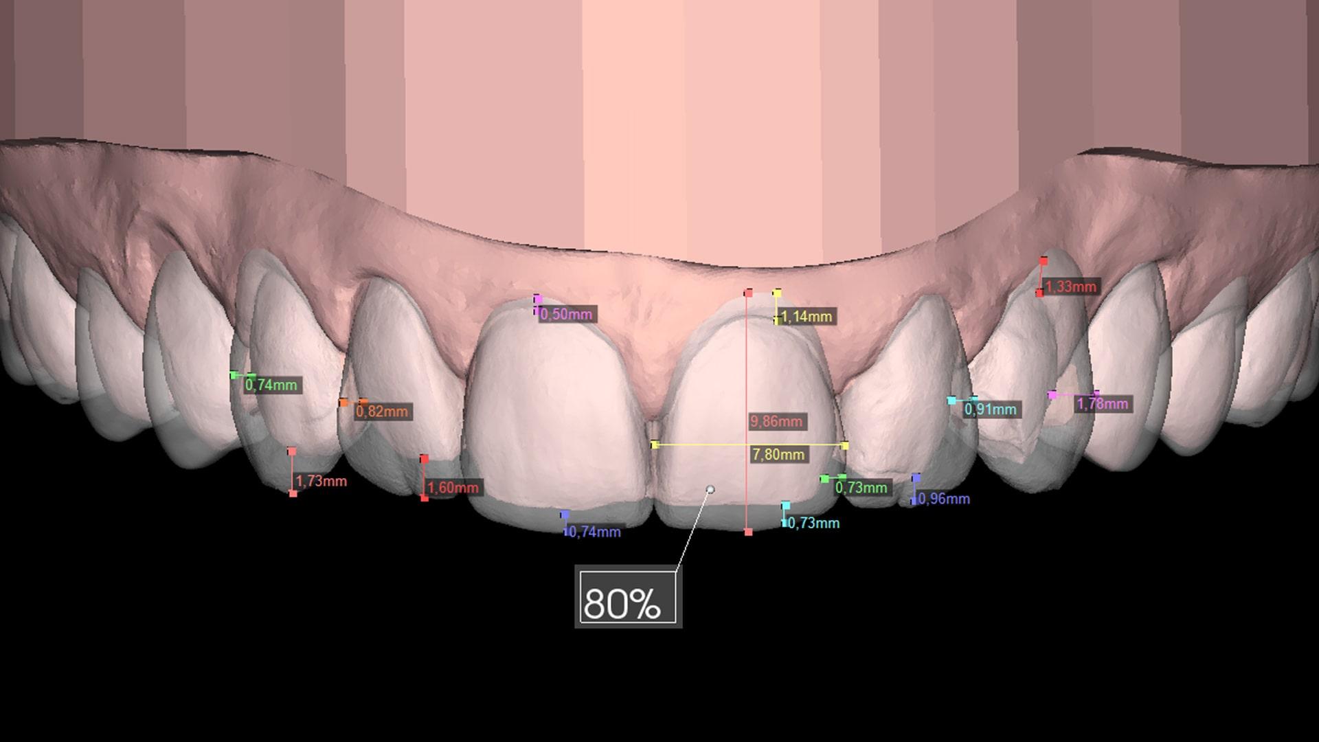 Dentes odontologia lente de porcelana